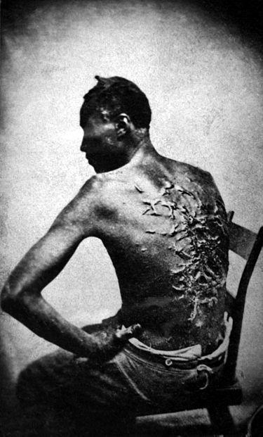 پیتر، بردهای از باتونروژ، ۱۸۶۳. جای زخمها ناشی از شلاق بدست صاحبش میباشد.